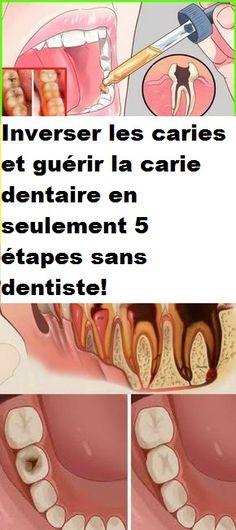 Inverser les caries et guérir la carie dentaire en seulement 5 étapes sans dentiste!