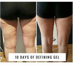Look at these results     ItWorks Defining Gel is amazing!!    ✔ Improves skin texture and tightness    ✔Redefines the appearance of your body's contours    ✔Softens and hydrates skin    All of this can enhance your tightening, toning and firming results on your abdomen, arms and thighs     Also a perfect companion to our wraps     Find out how to get your own bottle of defining get at my cost   Momofthreeboyd.itworks.com