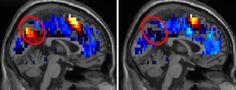 http://www.elmundo.es/salud/2014/12/03/547e19bf22601d84298b4571.html nuevos hallazgos sobre el cerebro de las personas con autismo.