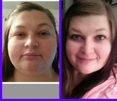 Thyroid And Swollen Face Pictures to Pin on Pinterest ...