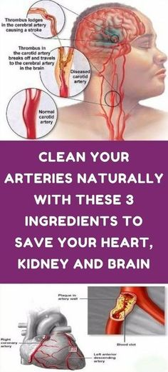 Watch This Video Captivating Clear Blocked Arteries with Natural Health Remedies Ideas. Splendid Clear Blocked Arteries with Natural Health Remedies Ideas. Natural Health Remedies, Natural Cures, Natural Healing, Holistic Remedies, Health Diet, Health And Wellness, Health Fitness, Fitness Goals, Fitness Tips