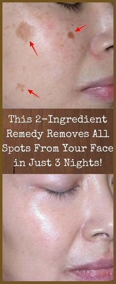 AMAZING  This 2-ingredient remedy removes all spots from your face in just 3 90e3c4635cb