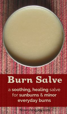 DIY Burn Cream: A Healing, Soothing Burn Salve for Everyday Burns - NourishingJoy.com