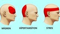 Baş ağrısından herhangi bir ilaç kullanmadan 5 dakika içerisinde bu şekilde kurtulun!