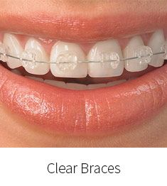 We use the most advanced clear ceramic braces for smile improvements. The cost of our ceramic braces starts from $3500. http://www.smileconcepts.com.au/orthodontics/ceramic-braces.html