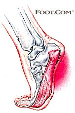 Got heel pain? It could be plantar fasciitis!