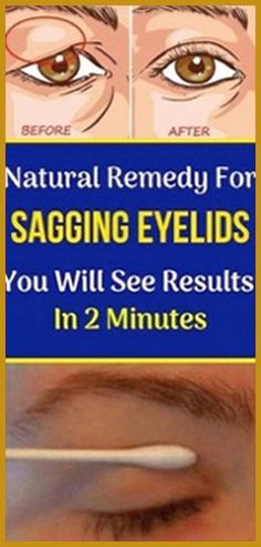 Natural Remedy for Sagging Eyelids You Will See Results In 2 Minutes! - Home Healthy Caring Holistic Remedies, Herbal Remedies, Health Remedies, Home Remedies, Natural Remedies, Natural Life, Natural Healing, Natural Living, Holistic Healing