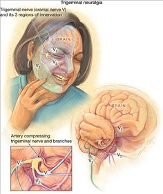 What is trigeminal neuralgia? Trigeminal neuralgia is nerve pain in the face, teeth, mouth, or nose. Attacks of pain may occur on one or both sides of the face. Trigeminal neuralgia is also called. Trigeminal Neuralgia Symptoms, Glossopharyngeal Neuralgia, Dental Anatomy, Medical Anatomy, Nerf Facial, Tooth Nerve, Craniosacral Therapy, Neuromuscular Therapy, Facial Nerve