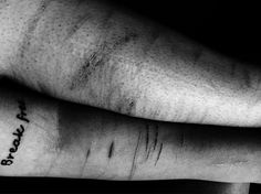 """""""I suffer from self harm since 8 years. lt's been over 5 monthd since I last self harmed but the scars never disappear. I constantly beat myself up for what had done. It's hard to be free, when so many memories and so much pain clings onto your body. It's hard to forget your past when it's written all over your body. We can overcome the pain of what happened to our bodies. You have to remember; Our scars are not reminders of what we suffered, they are reminders of how strong we are to have…"""