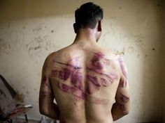 Syria's civil war: Images of horror . Man reveals torture scars caused by regime forces.