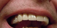 Beware of tooth pain----It could be a sign of tooth decay Healthy Teeth, Healthy Habits, Medical Care, Dental Care, Signs Of Tooth Decay, Mouth Sores, Dry Socket, Correct Time, Tooth Pain