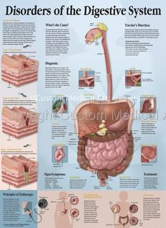 the digestive system | diseases and disorders | pinterest | body, Muscles
