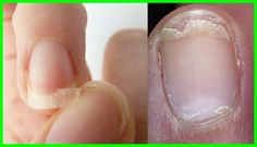 Every woman wishes to have beautiful nails and hates it when nails brittle. For this reason, we gathered list of home remedies to treat brittle nails. White Spots On Nails, Cracked Nails, Split Nails, Nail Infection, Thin Nails, Strong Nails, Damaged Nails, Nail Oil, Brittle Nails