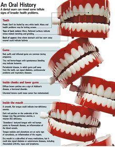 5 Steps to Good Flossing and Brushing in English/Spanish via The ...