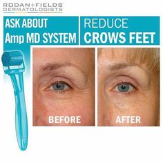 Rodan + Fields patent AMP MD roller system is a non-invasive micro-exfoliating roller and Redefine Night Renewing Serum.  This system is proven effective for firmer skin.  The system also comes with 16 purification tablets and a reusable vial.  Message me on pinterest @ R+Fskincare101.