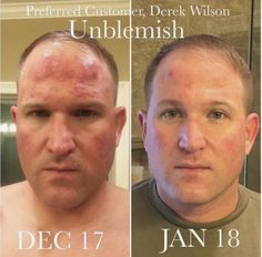 Check out these results after just 1 month on Unblemish! Rodan + Fields' regimens will give you the skin you want! Which regimen is right for you? Use the Solution Tool to find out! Anti Aging Skin Care, Natural Skin Care, Adult Acne Treatments, Rodan And Fields Consultant, Independent Consultant, New People, Skin Problems, Skin Care Regimen, Sensitive Skin