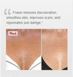 Fraxel Laser. Doin this in the fall to my face neck and chest. Can't wait!