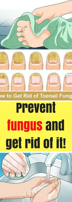 A fungus is a common problem for many people. It can affect us no matter the gender or the age because the fungus is all around us and cause many infections.