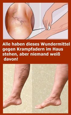 Everyone has this miracle cure for varicose veins in the house .- Alle haben dieses Wundermittel gegen Krampfadern im Haus stehen, aber niemand we… Everyone has this miracle cure for varicose veins in the house, but nobody knows about it! Wellness Tips, Health And Wellness, Health Fitness, Cellulite, Daily Health Tips, Les Rides, Varicose Veins, Keto Diet For Beginners, Weight Loss Transformation