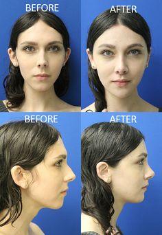 Boy receives facial feminization pic 357