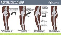 Fixing Posterior Pelvic Tilt - Hip Tilt Causes & Fixes Hip Flexor Exercises, Scoliosis Exercises, Hip Pain, Back Pain, K Tape, Posture Fix, Psoas Release, Chiropractic Treatment, Pelvic Tilt