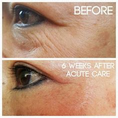 Rodan and Fields Acute Care product review, needle free wrinkle filler using patent liquid cone technology