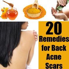 Top 20 DIY Home Remedies for Back Acne Scars