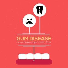 La enfermedad de las encías o enfermedad periodontal puede causar la pérdida de dientes.  Así es que si no quieres quedarte chimuelo, cepilla diario tus dientes, ten limpiezas dentales semestrales y usa hilo dental. ¡Tus dientes te lo agradecerán!
