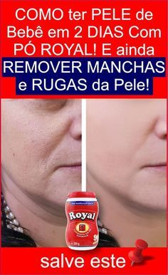 Remover Manchas Face Care Facial Face Beauty Hair And Beauty Face Masks Homemade Beauty Tips Hairstyle Tutorials Best Beauty Tips