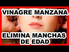 ¡¡MEDICOS ATERRADOS!! SE QUITÓ LAS MANCHAS MARRONES CON ESTE INGREDIENTE COMÚN ¡ASOMBROSO! - YouTube