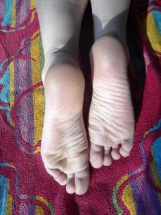 Helpful Links when Treating Dry and Cracked Feet - The Links Site