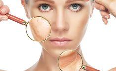 Vegetable Glycerin For Acne   #Beauty #SkinCare
