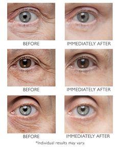 Under Eye Wrinkles, Under Eye Puffiness, Face Wrinkles, Peter Thomas Roth, Tighten Under Eye Skin, Tighten Skin, Beauty Care, Beauty Skin, Beauty Myth