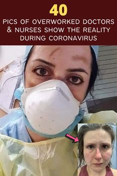 As the number of people who test positive for COVID-19 increases exponentially by the day, the faces of the doctors, nurses, and other healthcare heroes who are on the frontlines of the virus are actually starting to look eerily similar. Once they take off their N95 masks, the same weary sadness and exhaustion can be seen in their eyes – and on their cheeks. Yet, they proudly wear the red welts, bruises and marks of the too-tight masks like badges of honor!