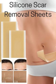 Scar Removal Silicone Sheets are Great salf treatment at home for Keloid scars, Pregnancy scars, C-section scar, Surgical scars, Accidental scars, Burn scars, Cosmetic surgical scars, Increased acne scars, Hypertrophic scars. Krucasano scar reduction treatment ingredients that can effectively remove scars. The soft and elastic silicone scar remover stickers are comfortable on the skin and they are also waterproof and sweat resistant. C Section Scars, Scar Reduction, Face Care Routine, Scar Treatment, Skin Tag Removal, Skin Products, Stretch Marks, Acne Scars, Organic Beauty