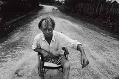 Paul Fusco (Magnum), 'liquidator' Nicolai Yanchen with leg cancer (1997) - the 'liquidators', the workers sent to Chernobyl to gain control of the reactor in meltdown:
