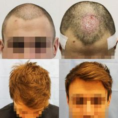 •Before and After•  This client had some hair loss in the front of his head- we patched that up using 811 grafts with a total of 2732 hairs transplanted👍  #hair #hairloss #hairlosstreatment #hairrestoration #hairsurgery #cosmeticsurgery #beforeandafter #results #newhair #happyclient #fue #follicularunitextraction #thinninghair #balding #transformation #confidence #harleystreet #london #hairrestore #hairtransplant