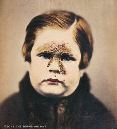 IMPETIGO, 1865  This photograph published in 1865 by British dermatologist Alexander Balmanno Squire in his text Photographs (Colored from Life) of the Diseases of the Skin demonstrates the British style of fully over-painting photographs to best show disease conditions. Impetigo a superficial skin infection caused by Staphylococcus aureus and Streptococcus pyoegnes. I