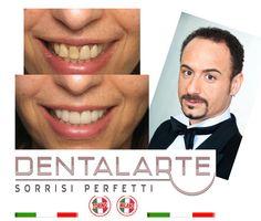 Estetica dentale con faccette in ceramica. Caso clinico . La prima clinica di estetica dentale in Italia. Scopri di piu' su www.dentalarte.eu