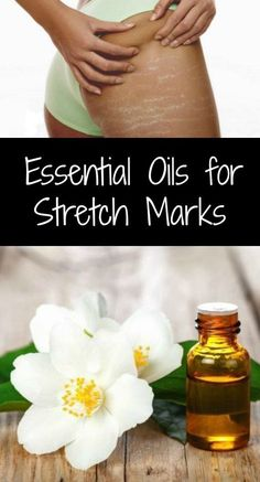 All women hate stretch marks. Some might embrace them as a necessary evil. Some might accept the fact that they are a part of life. But no woman likes stretch marks. The quest for smooth Essential Oil Stretch Marks, Bio Oil Stretch Marks, Are Essential Oils Safe, Organic Essential Oils, Organic Oils, Oils For Scars, Coconut Oil Uses, Doterra Essential Oils, Natural Medicine