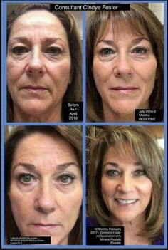 Redefine Regimen, eye cream, eye cloths, Amp Roller Lash Boot Microdrmabrasion paste mad her look so much younger and prettier! My Rodan And Fields, Rodan And Fields Redefine, Multifunction Eye Cream, Roden And Fields, 60 Day Challenge, Redefine Regimen, Aging Backwards, Anti Aging Skin Care, Good Skin