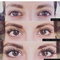 What if mascara was optional? Another great before and after with Rodan+Fields Lash Boost. A nightly conditioning serum that is applied along the lash line to give the appearance of longer, darker, and fuller looking lashes. Rodan Fields Lash Boost, My Rodan And Fields, Rodan And Fields Business, Lash Boost Results, Roden And Fields, Rodan And Fields Consultant, Independent Consultant, Eyelash Serum, Brow Serum