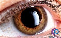 ¿Qué es la Uveítis? http://www.oftavision.com.mx/la-uveitis/