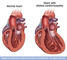 Compared with a healthy heart, dilated #cardiomyopathy causes the chambers of the heart to enlarge, which can lead to heart failure if left untreated. #HF