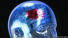 Clot-busting stroke drug safe, says expert review
