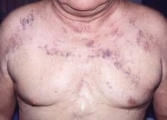 spider veins on chest pictures