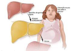 O fígado gorduroso é uma doença hepática bastante comum. Mas, pode ser tratado mediante uma dieta adequada...