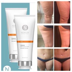 Incredible results is 7 days!  What do you have to lose but to try Nerium firm cream?  #lovingnerium #foranyone #menorwomen #feelgoodaboutyourself #loveyourlifetoday #firmtighten&cellulitebegone www.theresahum.nerium.ca