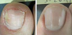 Televízia Markíza/ Pleseň nôh a nechtov: aký druh nebezpečenstva sa skrýva v tejto chorobe a ako sa jej zbaviť?
