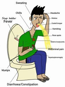Top 6 Self Acupressure Points for Constipation Relief at